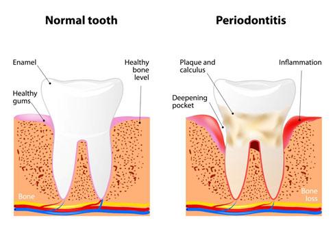 Gum Disease Anchorage